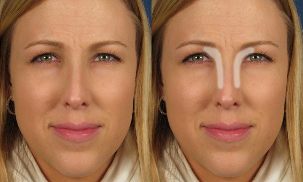 Как сделать визуально тонкий нос 70